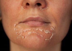 dermatologist chemical peel